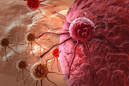 Лекуването на рак с алтернативна медицина удвоява шанса за преждевременна смърт