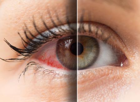 Хората, които работят на компютър страдат от дехидратация на очите